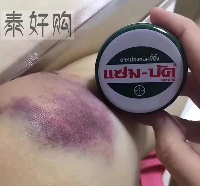 zam-buk乌青膏